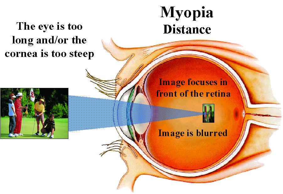 Eye Health – Myopia